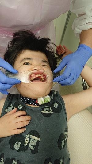 さん歯医者