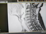 頸椎MRI画像20180604
